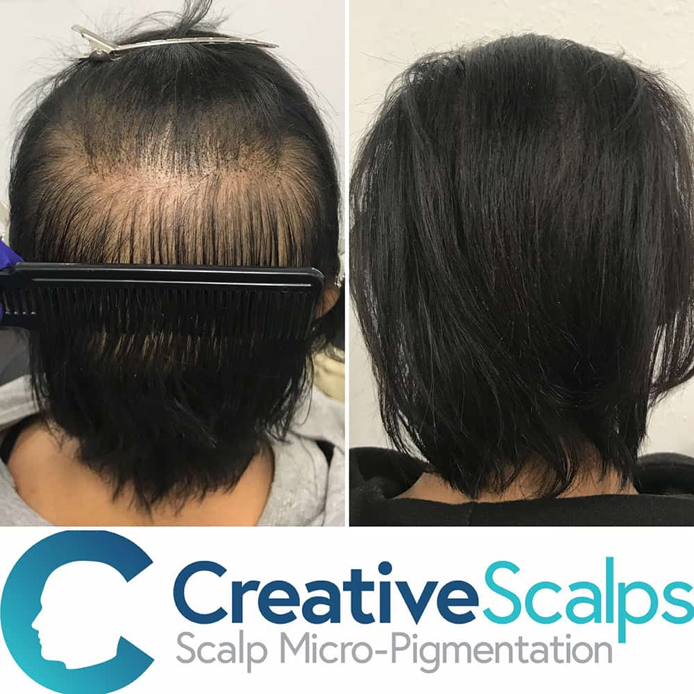 Photo of a scalp micropigmentation results before and after results on long hair