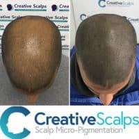 SMP photo of baling crown before and after