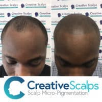 SMP results on receding hair