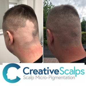 Scalp Micropigmentation results on Alopecia