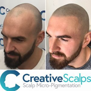 Scalp Micro pigmentation before and after - Creative Scalps