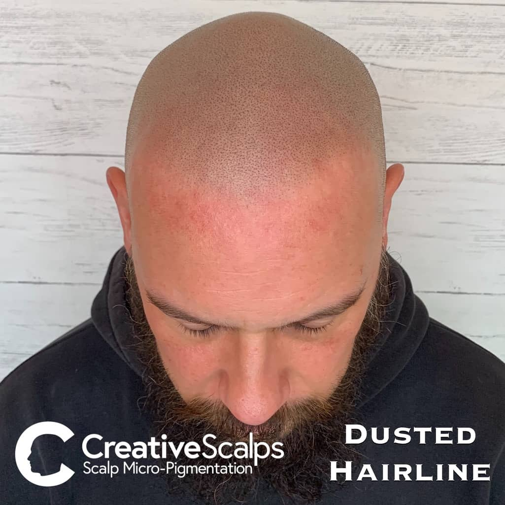 Dusted smp Hairline by Creative Scalps