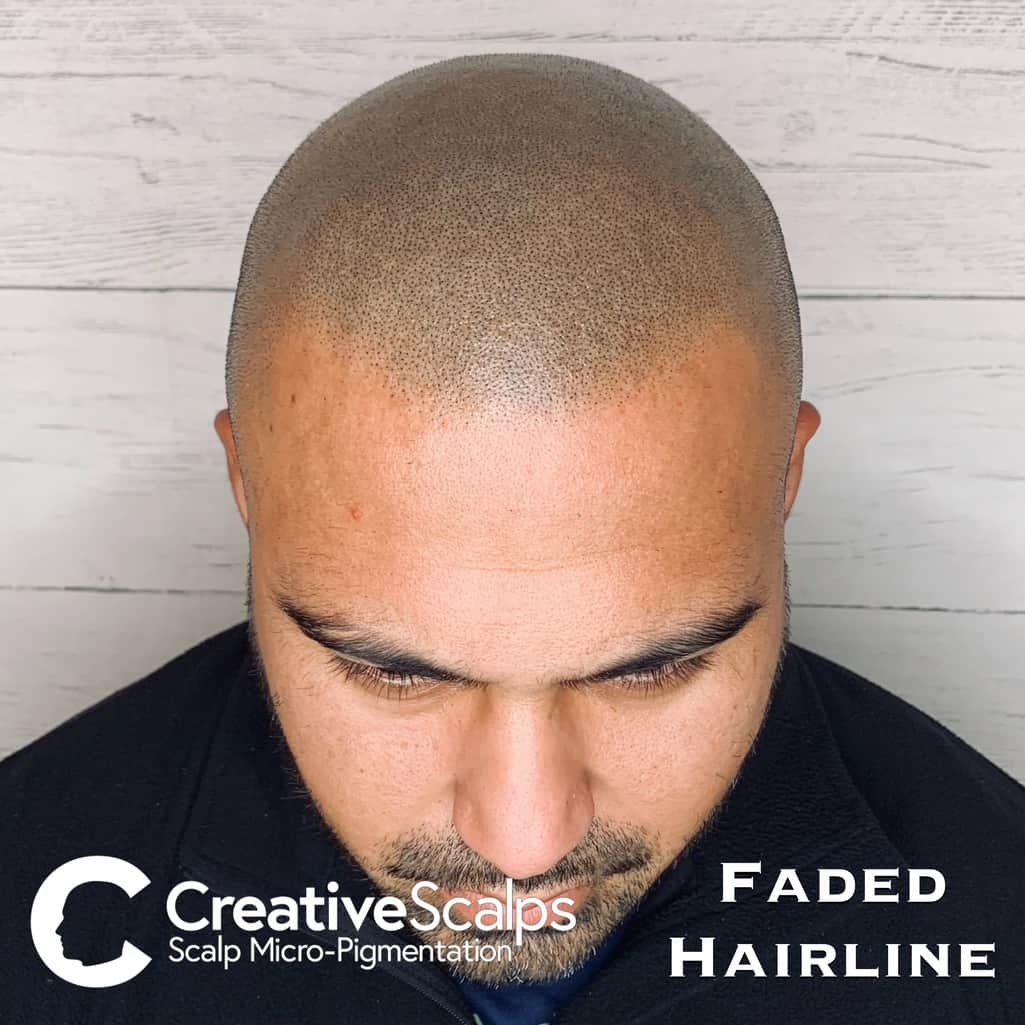 Faded smp Hairline by Creative Scalps