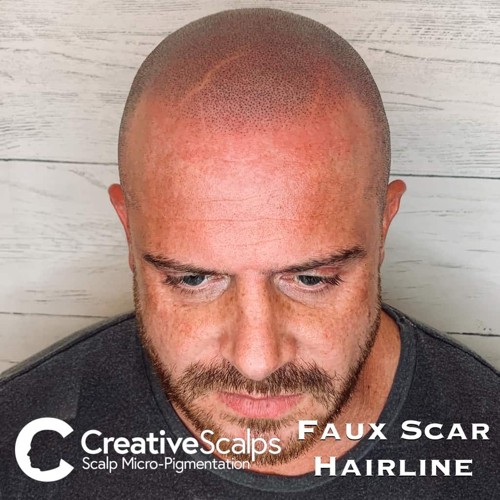Faux Scar smp Hairline by Creative Scalps