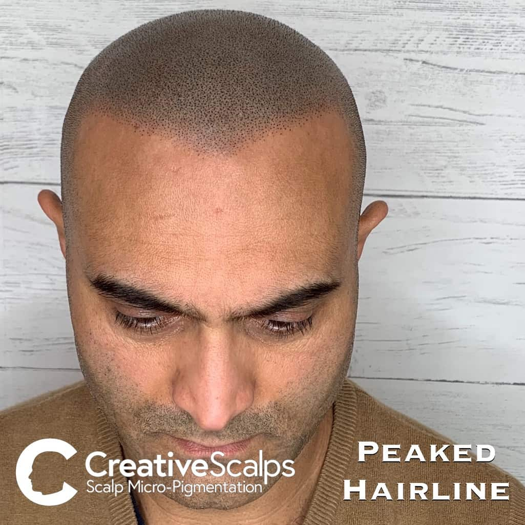 Peaked smp Hairline by Creative Scalps