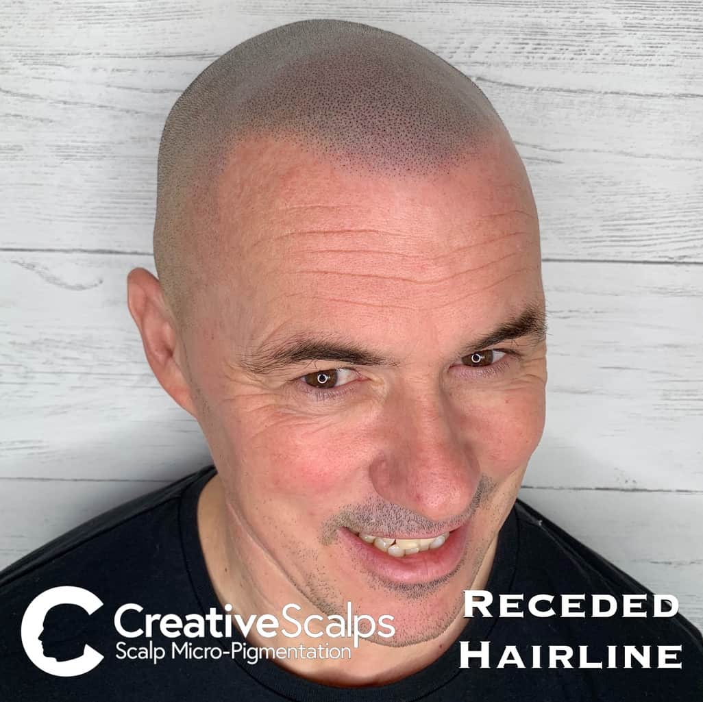 Receded smp Hairline by Creative Scalps
