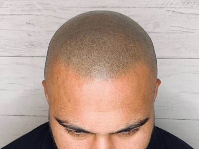 Hairline from Scalp Micropigmentation guide